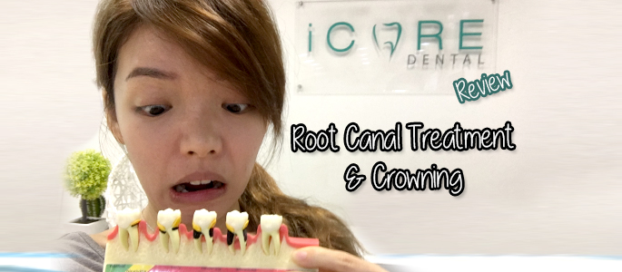 iCare Dental Malaysia Review: Root Canal Treatment + Crowning